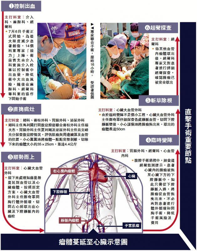 星辉:瘤体蔓延至心脏示意图